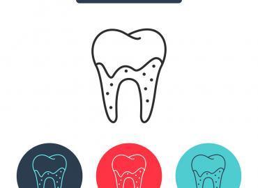 Tipps und Tricks um Zahnstein selbst zu entfernen