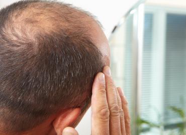Haarausfall durch Eisenmangel – Facts und Therapie