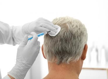 Haartransplantation Alternativen – schonend ohne Eingriff