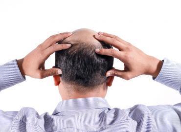 Haarwuchsmittel gegen Haarausfall – die besten Tipps