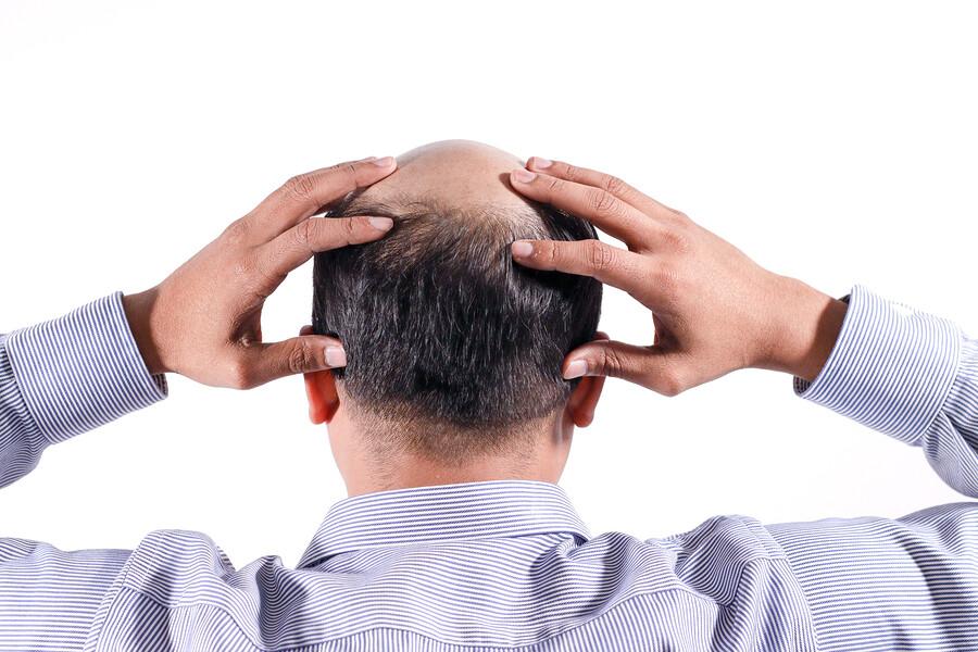 Haarwuchsmittel gegen Haarausfall