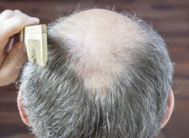 Mechanischer Haarausfall – wenn die Haare mechanisch beansprucht werden