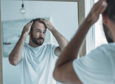 Diffuser Haarausfall – wenn die Haare gleichmäßig ausfallen