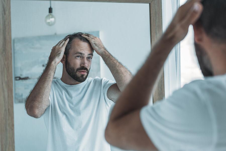 Diffuser Haarausfall - wenn die Haare gleichmäßig ausfallen