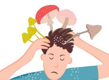 Haarausfall durch Kopfhautpilz