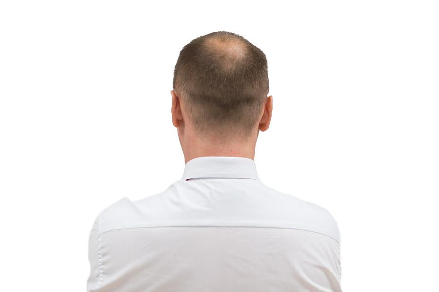 Traktionsalopezie - wenn die Haare stark beansprucht werden