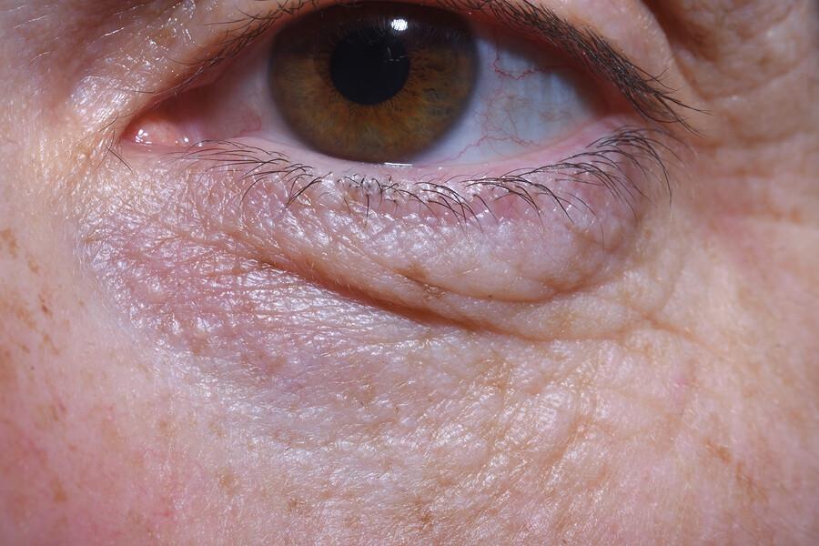 Augenringe beseitigen – die wichtigsten Tipps und Hintergründe