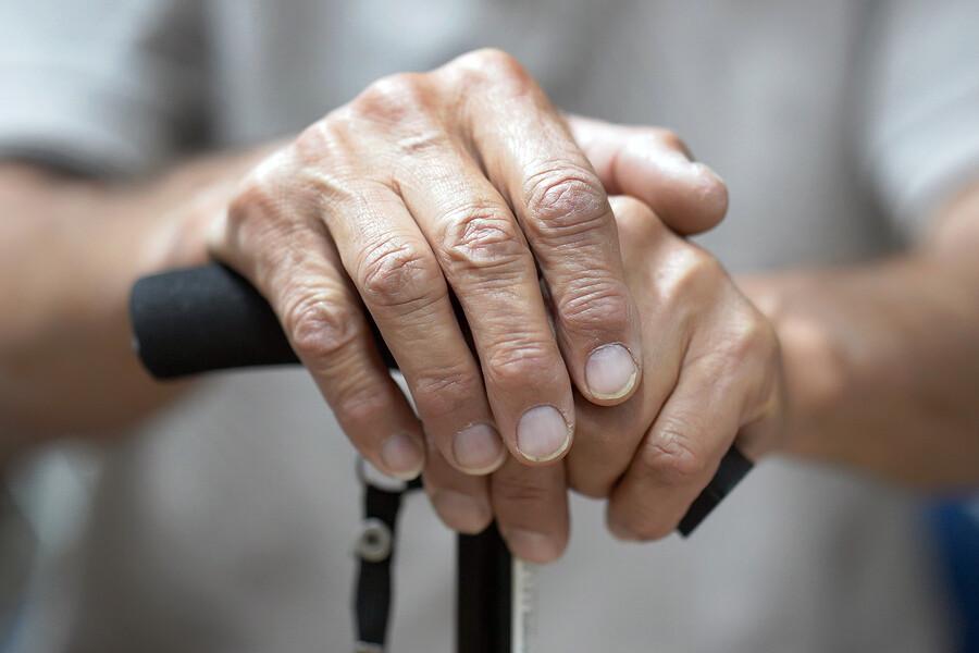 Was bei Fingerarthrose Linderung verschafft