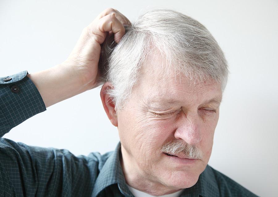 Das hilft wirklich gegen juckende Kopfhaut
