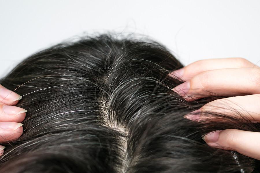 Haarausfall durch Haare färben – was nun