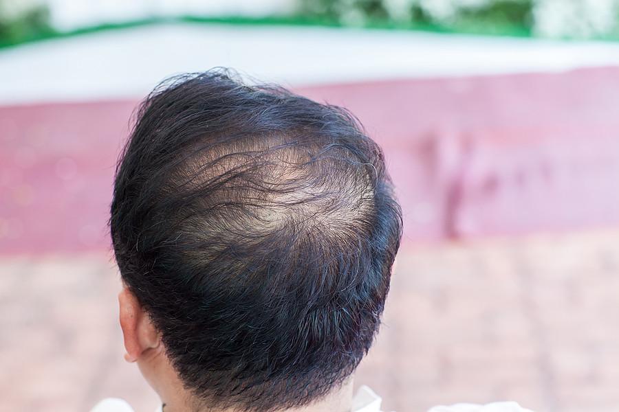 Haarausfall effektiv bekämpfen – so wirkt die Mesotherapie gegen Haarausfall