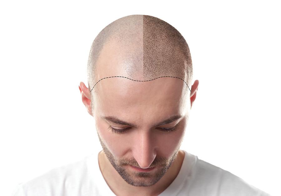 Haarpigmentierung und -Transplantation – wenn die Haarpracht nicht von Natur aus prächtig sein möchte