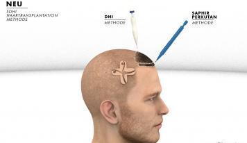 SDHI Haartransplantation – das Beste aus zwei Techniken